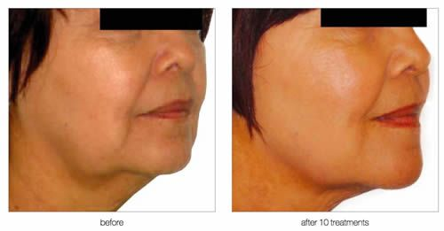 anti wrinkle tretment