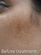 ipl-laser-pigmentation-1