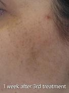 ipl-laser-pigmentation-after