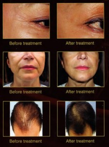 platlet-rich-plasma