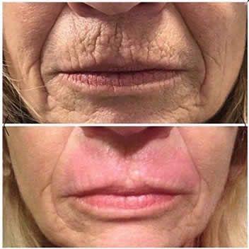 fibroblast face lift