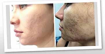 pepfactor skin rejucenation