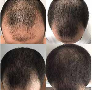 scalp rejuvenation thinning hair