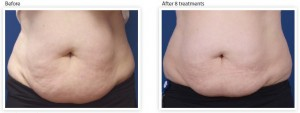 abdomen-skin-tightening-treatment