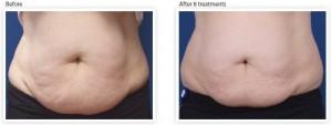 abdomen-skin-tightening-treatment