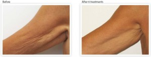 arm-skin-tightening