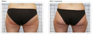 bum-cellulite-treatment