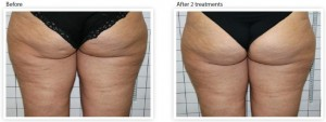 buttock-cellulite-laser-treatment