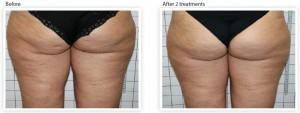 buttock-cellulite-laser-treatment
