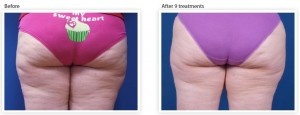 buttock-cellulite-reduction