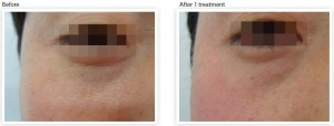skin-tightening-wrinkle-reduction-bags