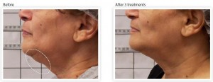 skin-tightening-wrinkle-reduction-chin