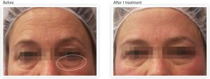 skin-tightening-wrinkle-reduction-eye