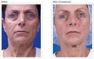skin-tightening-wrinkle-reduction-eyes
