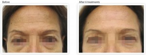 skin-tightening-wrinkle-reduction-forehear