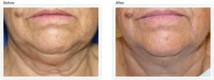 skin-tightening-wrinkle-reduction-neck