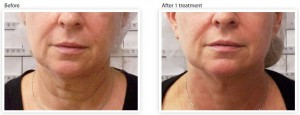 skin-tightening-wrinkle-reduction-nouth