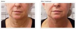 skin-tightening-wrinkle-reduction-nouth